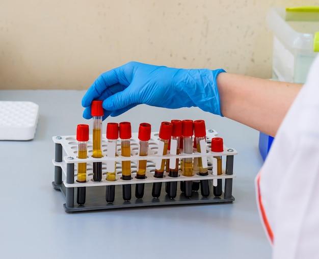 Mani dell'assistente di laboratorio in guanti che analizzano il campione di sangue. prevenzione. diagnosi di polmonite. covid-19 e identificazione del coronavirus. pandemia.