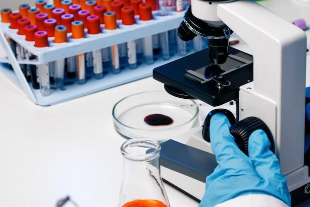Mani di un operaio di laboratorio che fa analisi del sangue