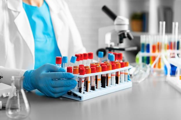 Le mani del lavoratore di laboratorio che tiene il vassoio con i campioni di sangue si chiudono