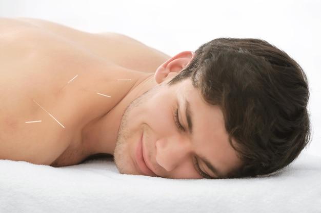 Bell'uomo al trattamento di agopuntura
