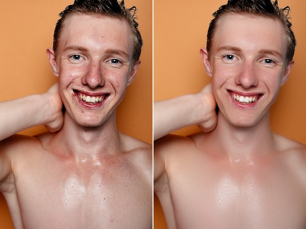 Concetto di salute, persone, gioventù e bellezza - prima e dopo l'operazione cosmetica. ritratto di giovane uomo. prima e dopo la procedura cosmetica o plastica, terapia anti-età, rimozione dell'acne, ritocco