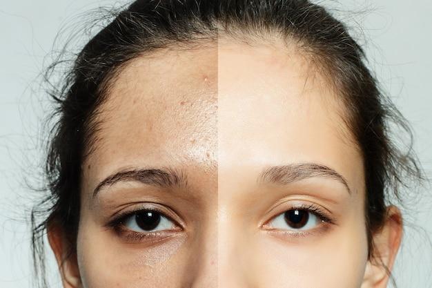 Concetto di salute, persone, gioventù e bellezza - prima e dopo l'operazione cosmetica. ritratto di giovane donna graziosa. prima e dopo la procedura cosmetica o plastica terapia anti-età, trattamento