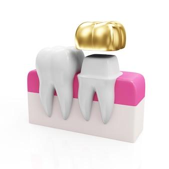 Dente di salute e denti con corona dentale dorata