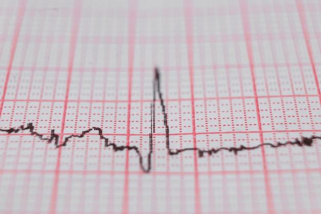 Grafico ecg dell'elettrocardiogramma cardiaco su carta speciale. concetto per scansione cardiaca, assicurazione sanitaria, background medico, esame.