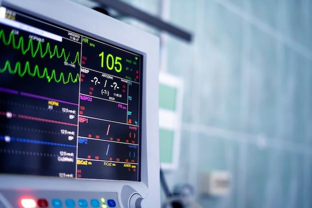 Schermo del monitor del cuore nella stanza d'ospedale.