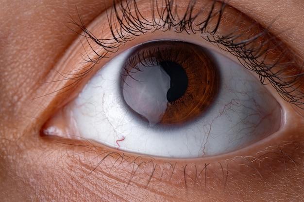 Occhio umano marrone ad alto ingrandimento che guarda in alto