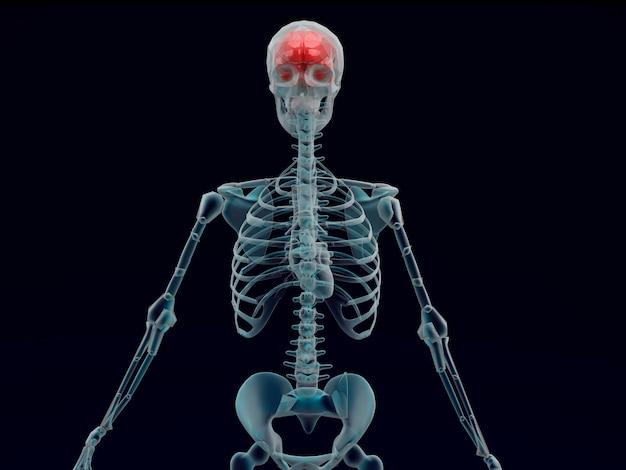 X raggio umano del cervello rosso nella priorità bassa nera