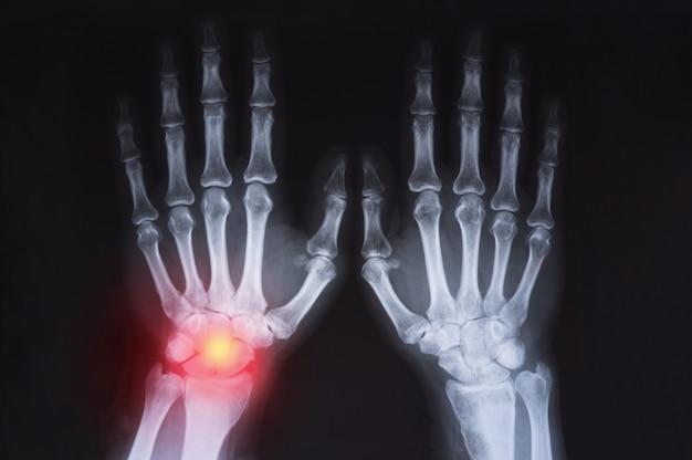 Il raggio x della mano umana è evidenziato in rosso.