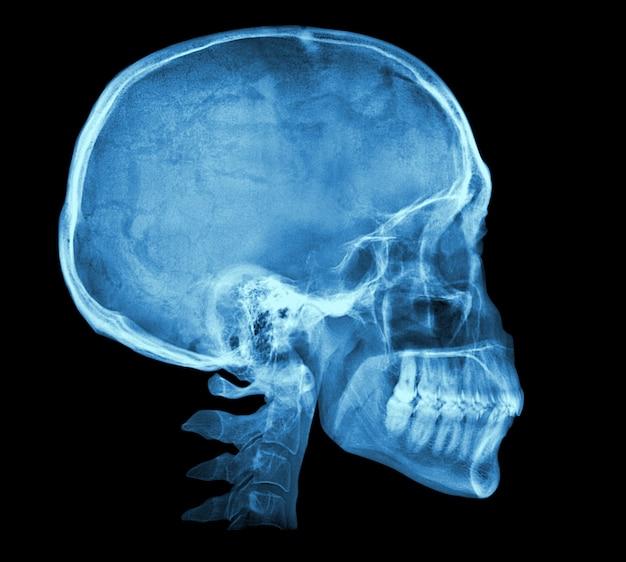 Immagine a raggi x del cranio umano