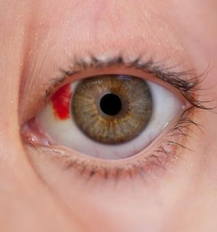 L'occhio ferito