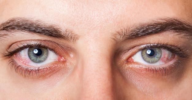 Occhi iniettati di sangue rosso irritato
