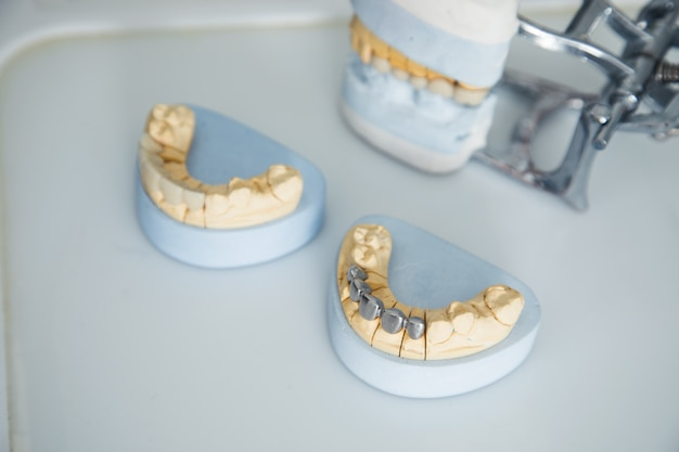 Modello di mascella sul tavolo del dentista
