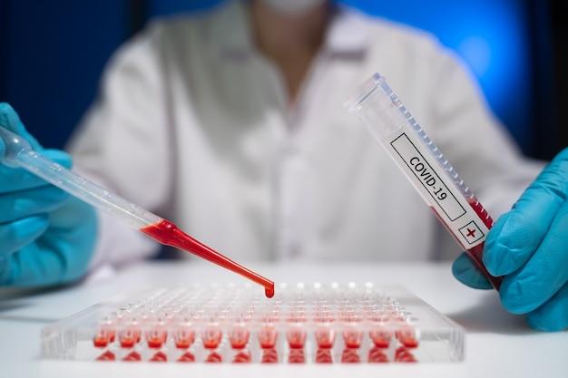 Il tecnico di laboratorio analizza il sangue del paziente per l'infezione da una nuova infezione da coronavirus.