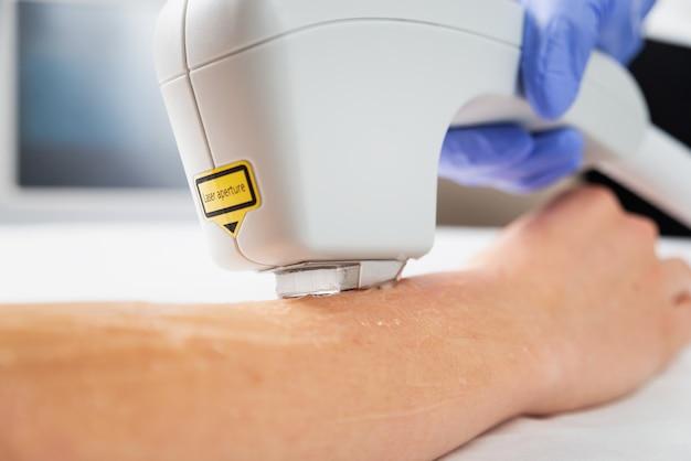 Depilazione laser delle mani in un salone di bellezza. procedura di rimozione dei peli delle mani utilizzando la tecnologia di epilazione laser avvicinamento.