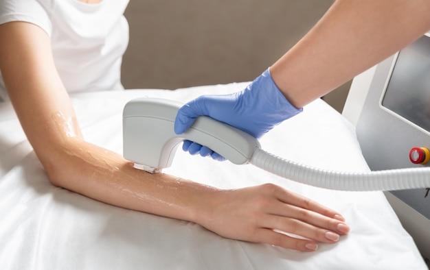 Depilazione laser delle mani in un salone di bellezza. procedura di rimozione dei peli delle mani utilizzando la tecnologia di epilazione laser