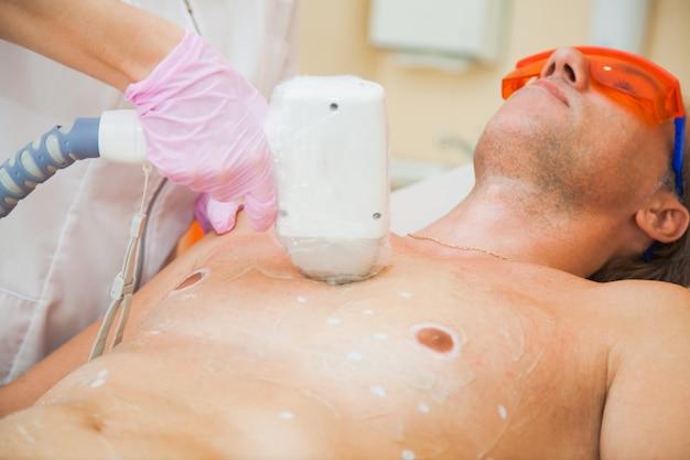 Procedura di epilazione laser per l'uomo. persona di sesso maschile presso l'ufficio cosmetologo sulla depilazione totale del corpo. concetto di pelle liscia e sana.