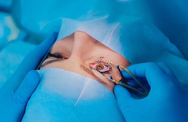 Correzione della visione laser. un paziente e un team di chirurghi in sala operatoria durante la chirurgia oftalmica.