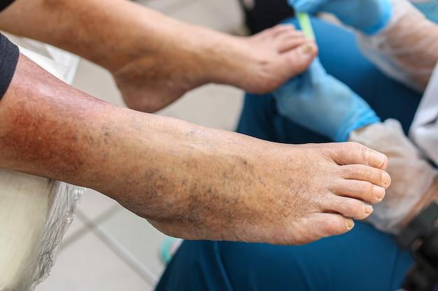Malattia delle vene delle gambe, macchie scure sulla pelle delle gambe, trattamento, esame delle unghie dei piedi, funghi.