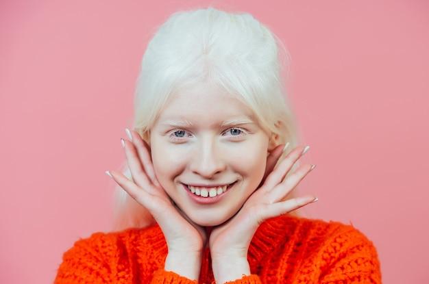 Immagine di stile di vita di una ragazza albina in posa in studio. concetto di positività del corpo, diversità e moda