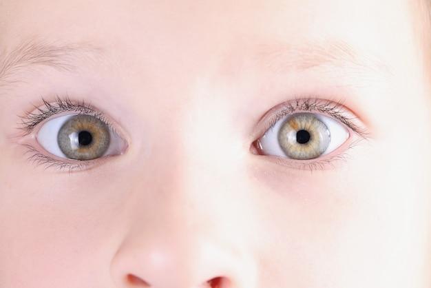 Occhi della bambina con un leggero primo piano strabico