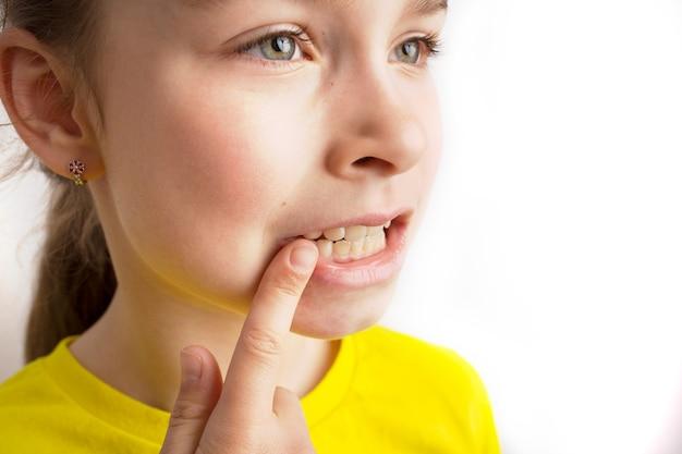 La bambina sta su uno sfondo bianco con un bel sorriso, i denti storti dei bambini, l'odontoiatria pediatrica. primo piano dei denti storti. è necessaria la correzione della malocclusione. foto di alta qualità
