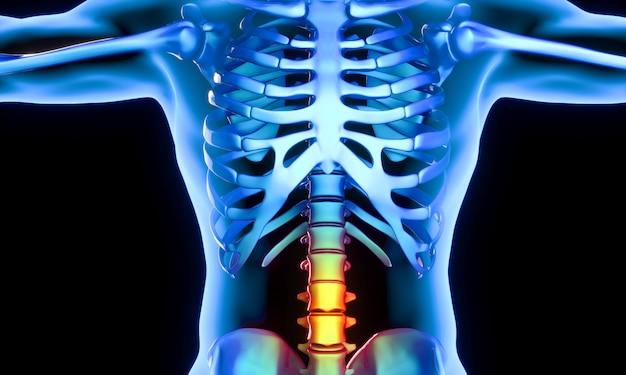 Parte lombare delle vertebre che presentano dolore
