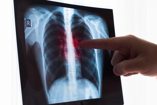 Concetto di radiografia polmonare. medico di radiologia che esamina alla radiografia del torace del paziente lung cancer o polmonite.