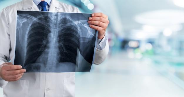Concetto di radiografia polmonare.