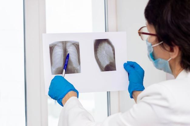 Scansione a raggi x del polmone nelle mani del medico donna medico esaminando la scansione polmonare del paziente che tiene in mano e che punta alla tubercolosi
