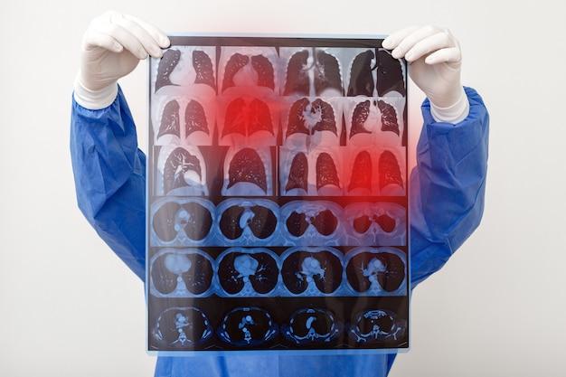 Scansione polmonare nelle mani del medico. chirurgo in uniforme protettiva controlla il film mri. coronavirus covid 19, polmonite, tubercolosi, cancro ai polmoni, malattie respiratorie.
