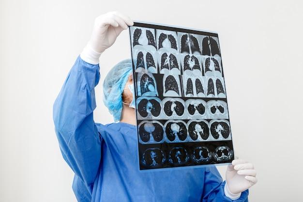 Scansione dei polmoni nelle mani del dottore. chirurgo in uniforme protettiva controlla la pellicola mri.