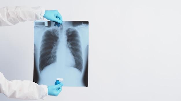 Pellicola radiografica dei polmoni nelle mani del medico che indossa guanti medici e tuta dpi che mostra una pellicola di scansione di una sindrome respiratoria rara o di una polmonite o di un polmone malsano infettato da coronavirus