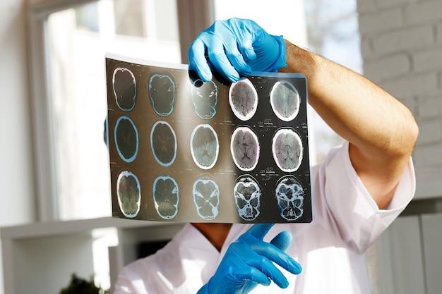 Il medico maschio esamina la risonanza magnetica cerebrale di un paziente in ospedale