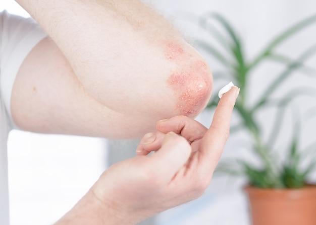Un uomo applica una crema al gomito affetto da psoriasi