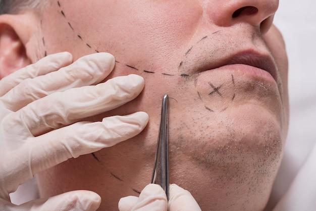 Impianto di capelli barba procedura bellezza uomo per uomo anziano