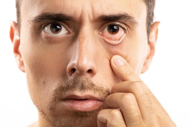 Uomo che controlla la condizione del suo occhio