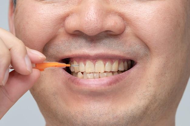 Uomo che pulisce i suoi denti con uno spazzolino interdentale.