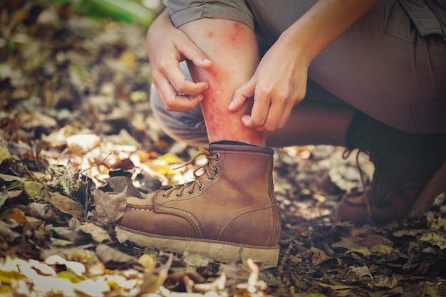 Un uomo ha dolore alle gambe da morsi di insetti, avengers della foresta