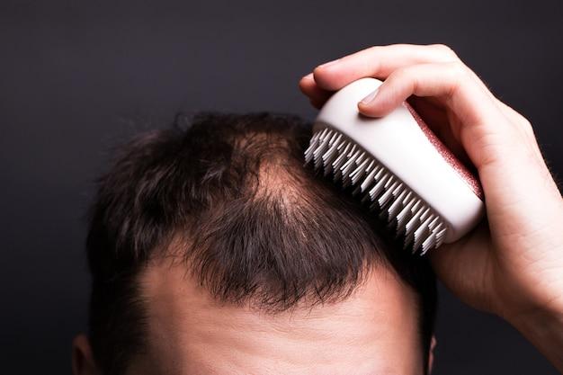 Un uomo si sta pettinando i capelli. testa con calvizie. il problema della crescita dei capelli sulla testa.