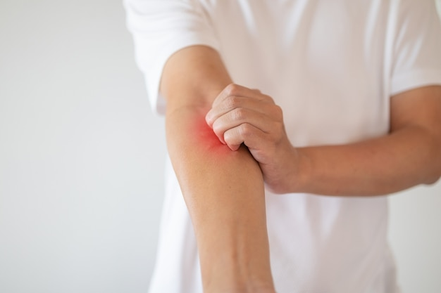 Uomo prurito e graffi sul braccio da dermatite da eczema pruriginoso della pelle secca
