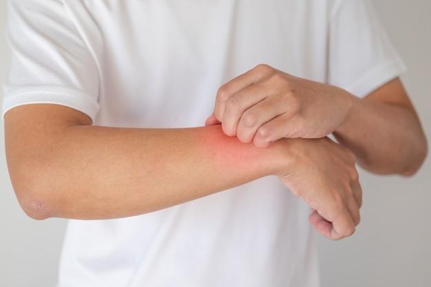 Uomo che prude e si gratta sul braccio a causa della dermatite da eczema della pelle secca e pruriginosa
