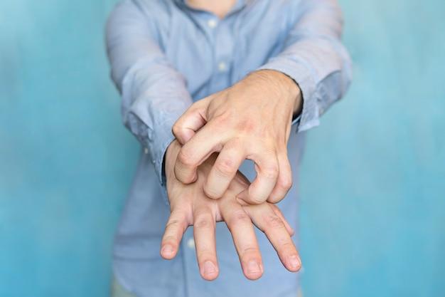 Mani pruriginose dell'uomo su sfondo blu. scabbia sulle mani