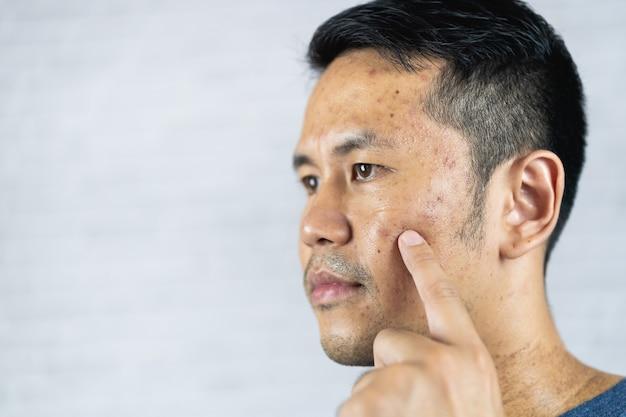 Uomo che indica l'acne l'infiammazione si verifica sul viso dopo aver indossato la maschera per lungo tempo durante la pandemia di covid-19.