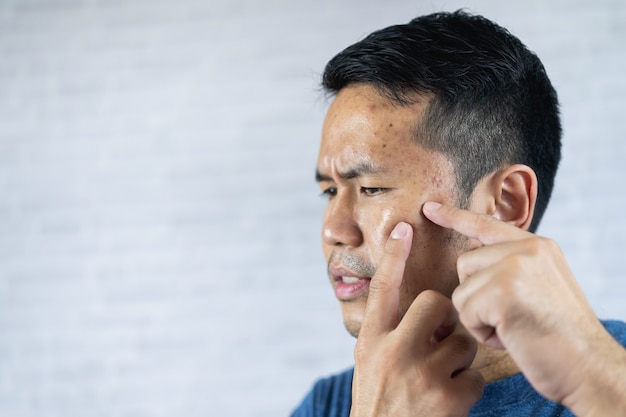 L'uomo che indica l'acne infiammata si verifica sul suo viso.