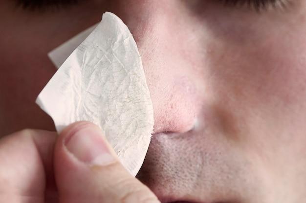 Un uomo indossa e rimuove una striscia per il naso dai punti neri. strisce per la pulizia del carbone da punti neri e comedoni. il concetto di cura personale.