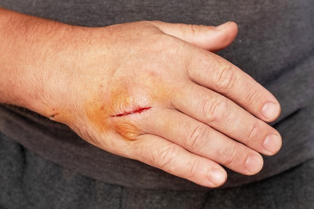 Mano d'uomo con una ferita da taglio
