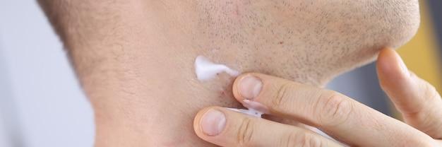 Collo dell'uomo con barba incolta e crema da barba. concetto di irritazione cutanea e rasatura maschile