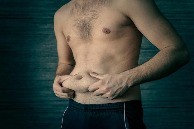 L'uomo spreme il grasso della pancia su sfondo scuro. fase iniziale dell'obesità. un maschio adulto si schiaccia una piega di grasso sullo stomaco. il problema dell'obesità nei giovani.