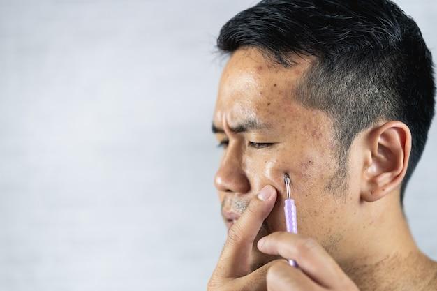 Uomo che usa il dispositivo di rimozione dell'acne sul viso su sfondo grigio