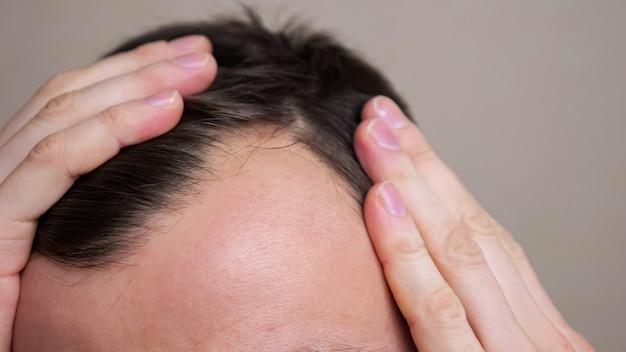 Uomo con punti calvi che soffrono di perdita di capelli. trattamento del problema dei capelli